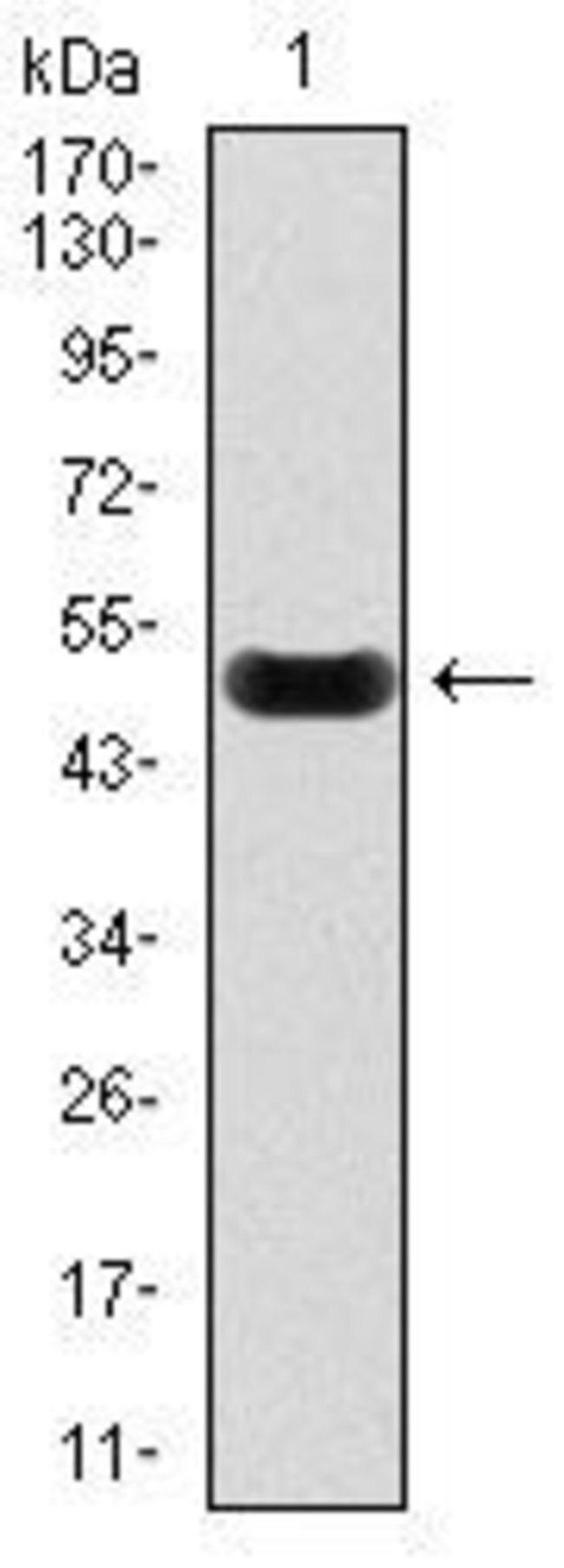 Anti-C-Reactive Protein (CRP) Antibody WB