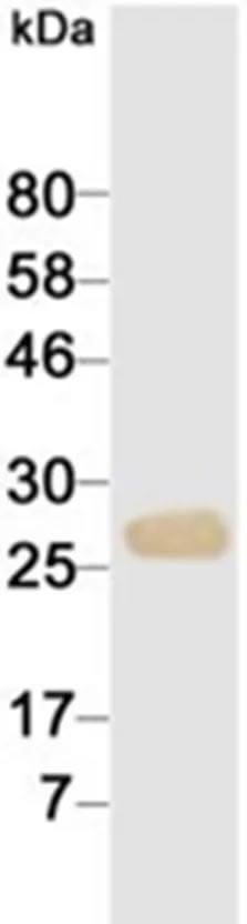 WB에서 항 -cTnI 항체