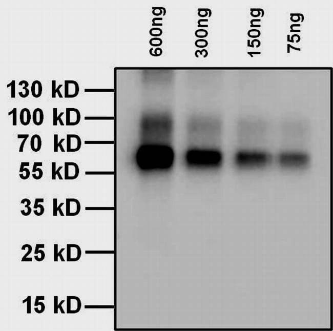 Thyroxine T4 Antibody in WB